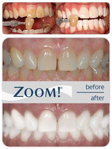 Отбеливание зубов в иванове
